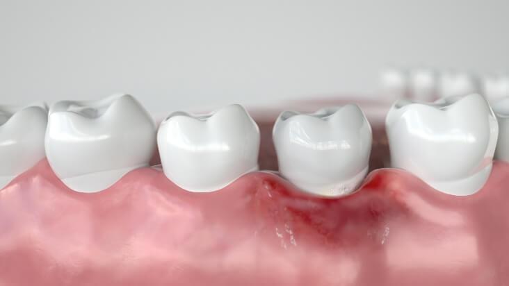 Animation Zahnfleischrückgang an unterer Zahnreihe