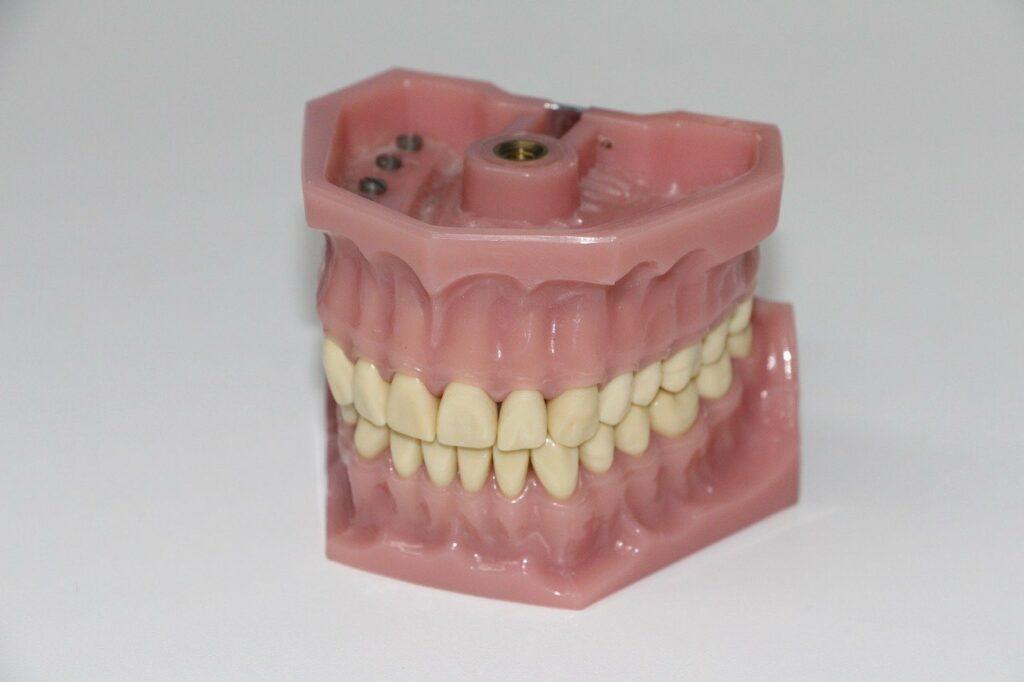 anschauung zahnprotese