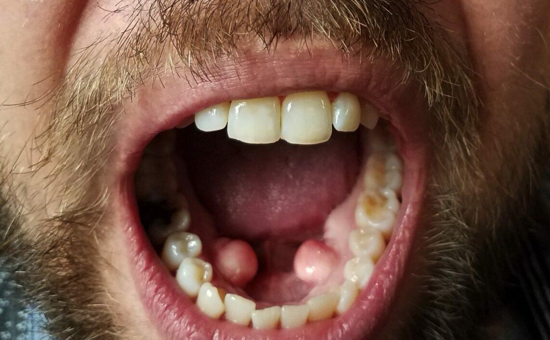 geöffneter mund eines mannes