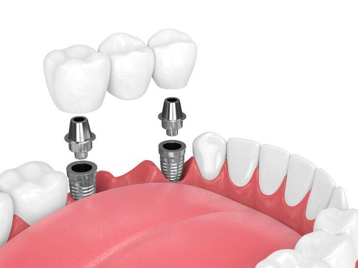 zahnimplantat animation zahnbrücke zwei implantante unterkiefer